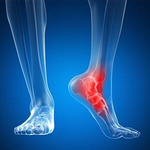 forte physical health foot and ankle pain